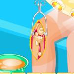Szuper jó térd műtét Barbie játék